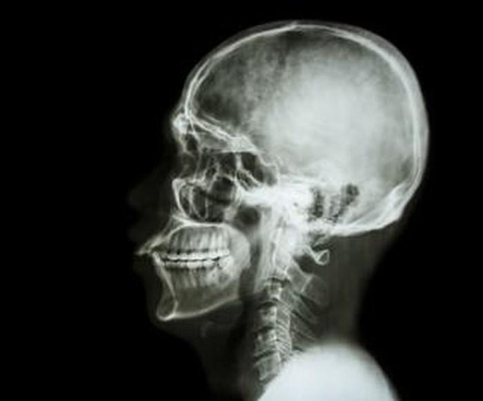 Trasplante de cabeza será posible en dos años, dice médico italiano