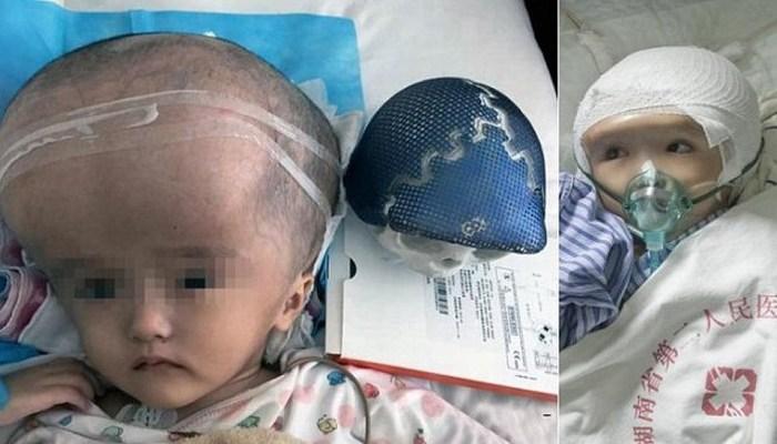 Hazaña médica: Trasplantan cráneo impreso en 3D a niña con hidrocefalia