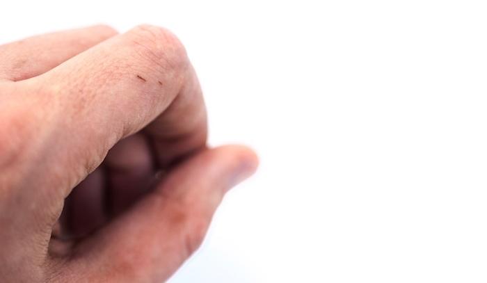 Cómo extraer una astilla sin dolor