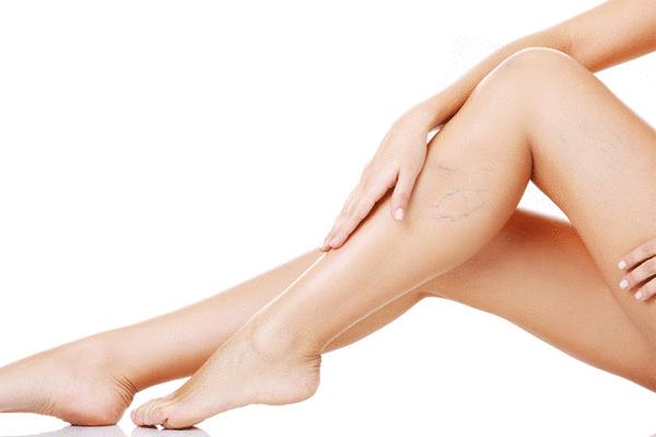 3 pasos para adelgazar tus piernas