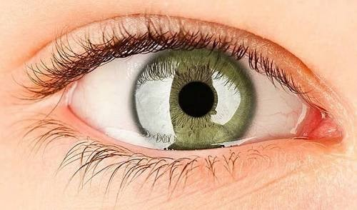 Síndrome del ojo seco.