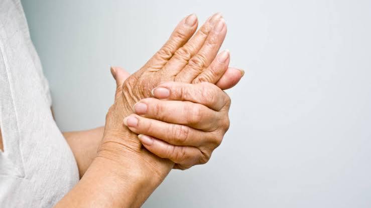 Remedios naturales para quitar la artritis.