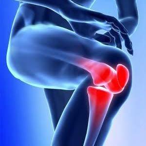 Pomada para quitar el dolor de articulaciones.