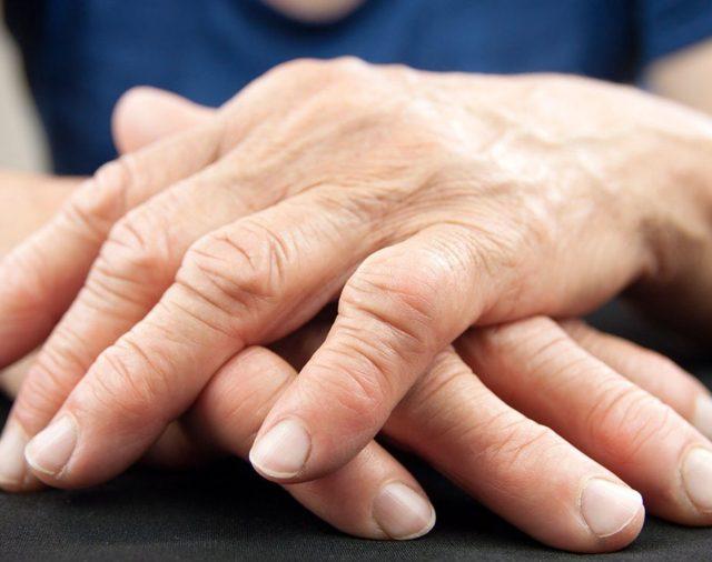 12 de octubre: Día Mundial de la Artritis Reumatoidea