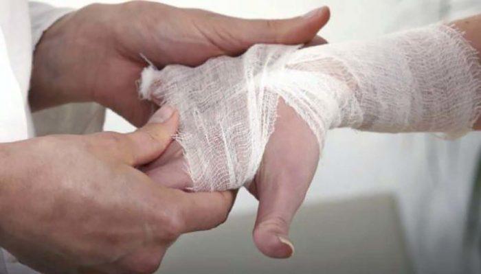 La droga que cura la lepra muestra datos prometedores contra la covid