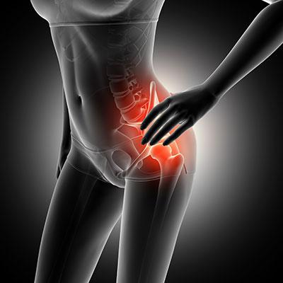 Síndrome piriforme: ¿por qué se confunde con dolor de ciática y afecta más a las mujeres?