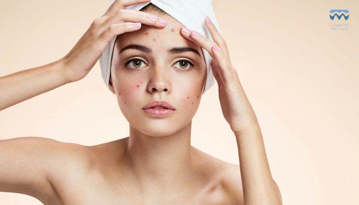 Probióticos, los nuevos aliados para combatir el acné y la rosácea