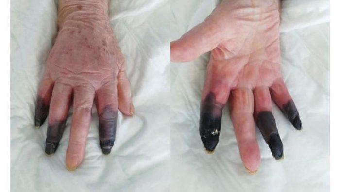 Covid-19 provoca gangrena en dedos