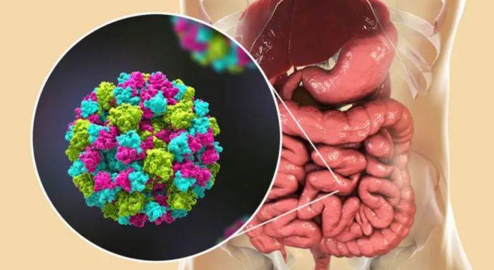 ¿Qué es el norovirus? La enfermedad que alerta a Reino Unido