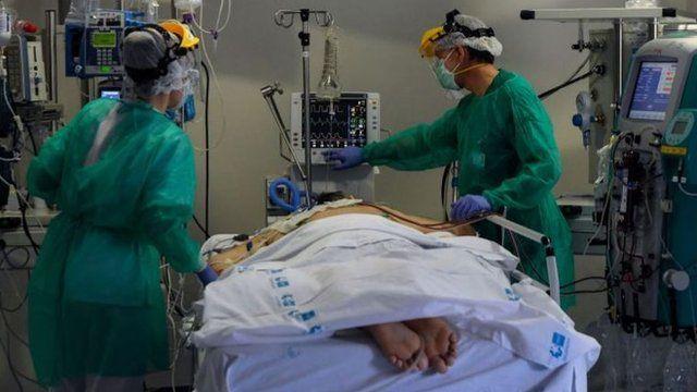 Colocar a pacientes Covid-19 boca abajo reduce riesgo de intubación, sugiere estudio en el que México participa